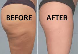 my cellulite solution program review